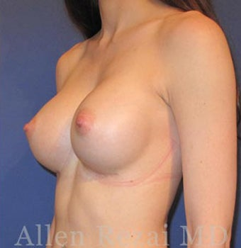 Bilateral Breast Augmentation & Correction of Asymmetry in level of Breast Fold - Pre- & 8 Month Post-op 3473929