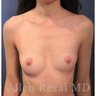 Bilateral Breast Augmentation & Correction of Asymmetry in level of Breast Fold - Pre- & 8 Month Post-op before 3473929
