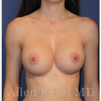 Bilateral Breast Augmentation & Correction of Asymmetry in level of Breast Fold - Pre- & 8 Month Post-op after 3473929