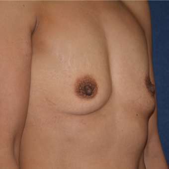 45-54 year old woman treated with Breast Augmentation before 3413173