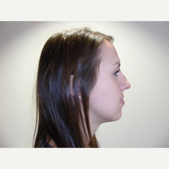 18-24 year old woman treated with Rhinoplasty before 3686889