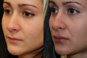 Permanent Lip Augmentation with Silikon-1000 before 1327147