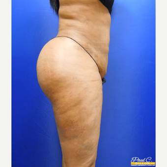 35-44 year old woman treated with Brazilian Butt Lift after 3604064