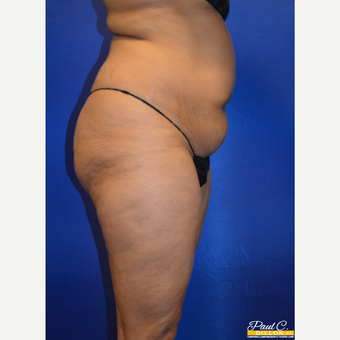 35-44 year old woman treated with Brazilian Butt Lift before 3604064