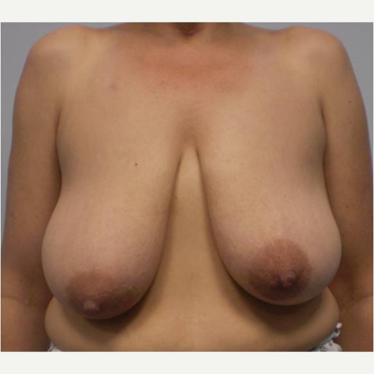 45 year old woman treated with Breast Reduction before 3727315