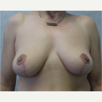 45 year old woman treated with Breast Reduction after 3727315