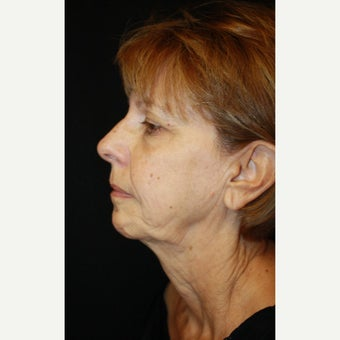 65-74 year old woman treated with Mini Face Lift before 2126766