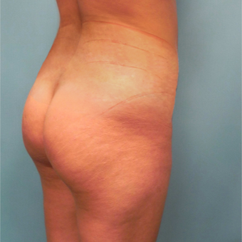 25-34 year old woman treated with Fat Transfer before 2802305
