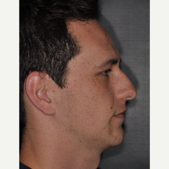 18-24 year old man treated with Rhinoplasty 6 weeks post-op before 3499612
