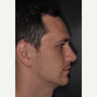 18-24 year old man treated with Rhinoplasty 6 weeks post-op after 3499612
