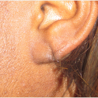 25-34 year old woman treated with Ear Lobe Surgery and Ear piercing before 3218466