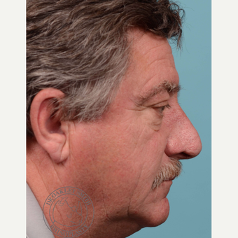 55-64 year old man treated with rhinophyma after 3092641