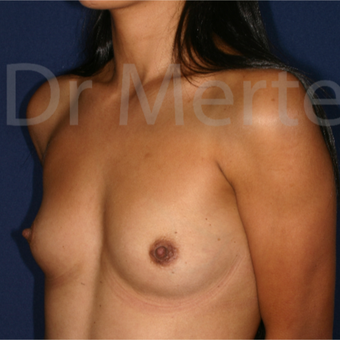 25-34 year old woman treated with Breast Augmentation before 3550603