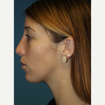 18-24 year old woman treated with Rhinoplasty after 3703601