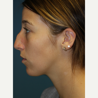 18-24 year old woman treated with Rhinoplasty before 3703601