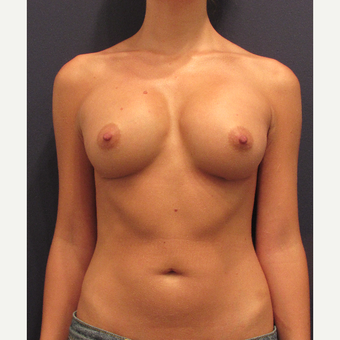 25-34 year old woman treated with Breast Implant Revision after 3287310
