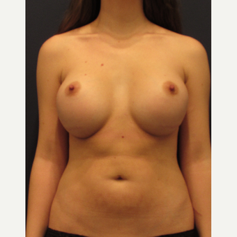 25-34 year old woman treated with Breast Implant Revision before 3287310