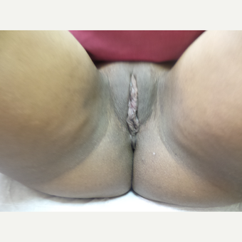 25-34 year old woman treated with Labiaplasty after 3542804