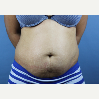 35-44 year old woman treated with Tummy Tuck before 3207345