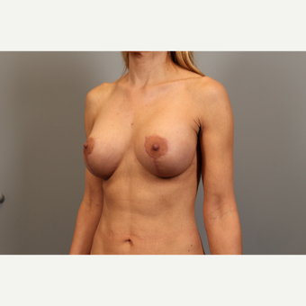45 year old woman treated with Breast Lift with Implants after 2976550