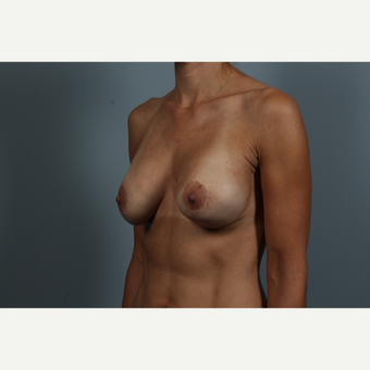 45 year old woman treated with Breast Lift with Implants before 2976550