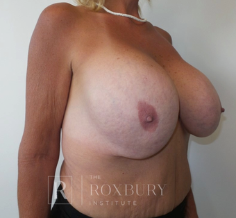 55-64 year old woman treated with Breast Implant Removal before 3850823