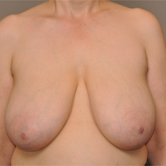 45-54 year old woman treated with Breast Reduction before 3495065
