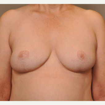45-54 year old woman treated with Breast Reduction after 3495065