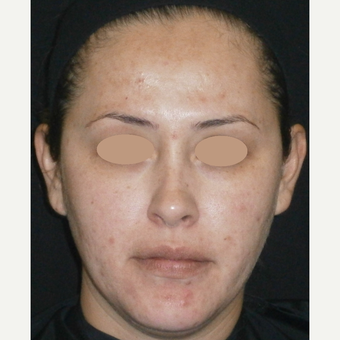 35-44 year old woman treated with Acne Treatment after 3150232