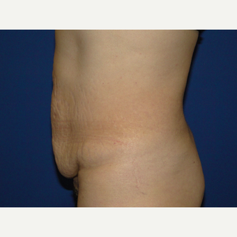51year old treated with Tummy Tuck before 3787805