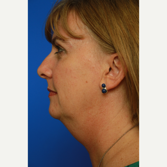 53- year old woman treated with Facelift before 3108537