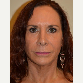 55-64 year old woman treated with Facelift after 3664421