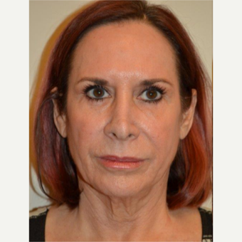 55-64 year old woman treated with Facelift before 3664421