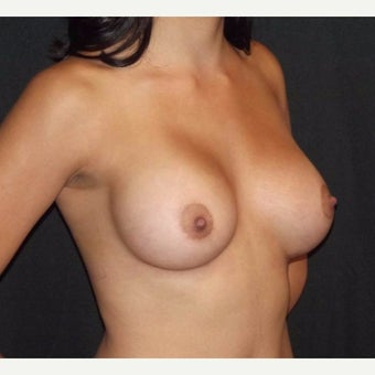 25-34 year old woman treated with Breast Augmentation after 2015073