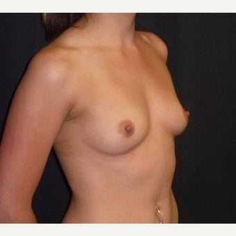 25-34 year old woman treated with Breast Augmentation before 2015073