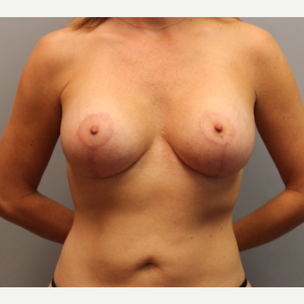 35-44 year old woman treated with Breast Lift with Implants after 1548553