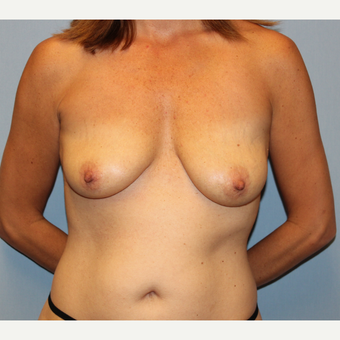 35-44 year old woman treated with Breast Lift with Implants before 1548553