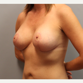 35-44 year old woman treated with Breast Lift with Implants 1548553