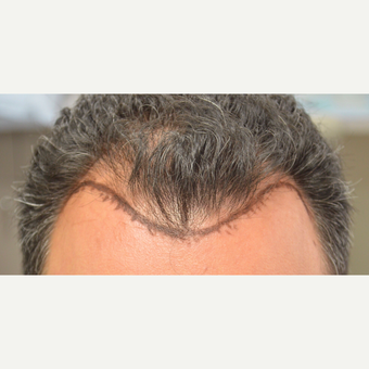 35-44 year old man treated with FUE Hair Transplant before 3712369