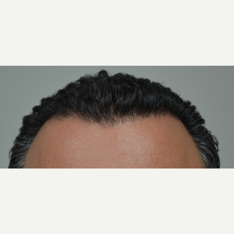 35-44 year old man treated with FUE Hair Transplant after 3712369