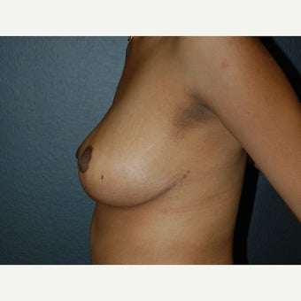 45-54 year old woman treated with Breast Reduction 1732906