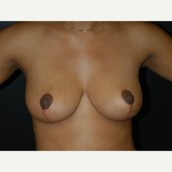 45-54 year old woman treated with Breast Reduction after 1732906