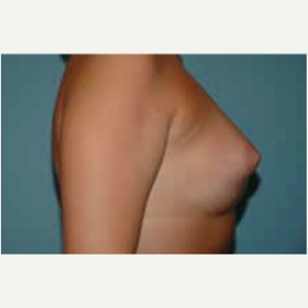 Breast Augmentation after 3058299