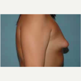 Breast Augmentation before 3058299