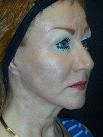 49 year old with Cheek Volume Loss 1322619