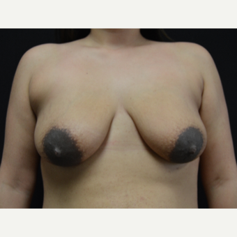 25-34 year old woman treated with Breast Lift with Implants before 3327082