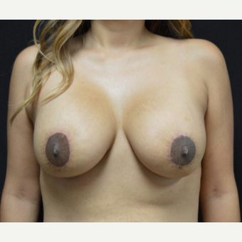 25-34 year old woman treated with Breast Lift with Implants after 3327082