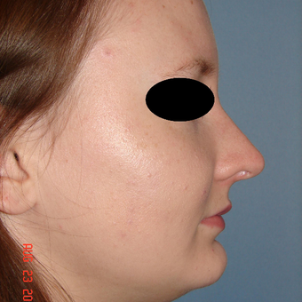 18-24 year old woman treated with Rhinoplasty after 3287931