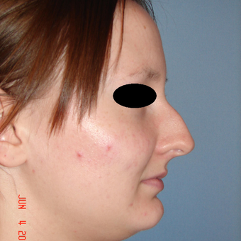 18-24 year old woman treated with Rhinoplasty before 3287931