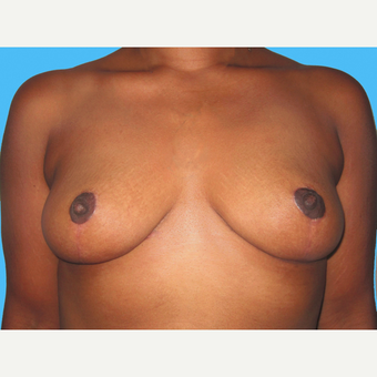 Breast Reduction after 3809970